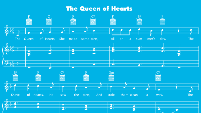 Image for Queen of Hearts – Sheet Music